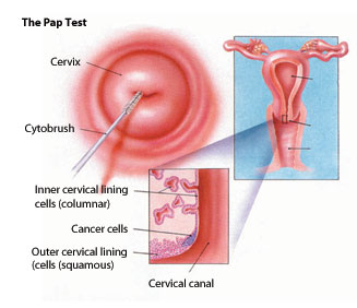 Pap Test Diagram
