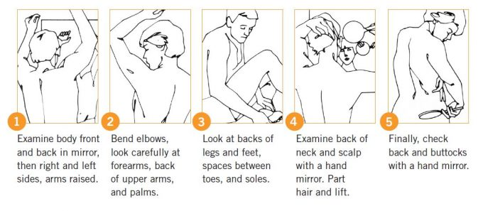 Graphic courtesy of the American Academy of Dermatology's Body Mole Map